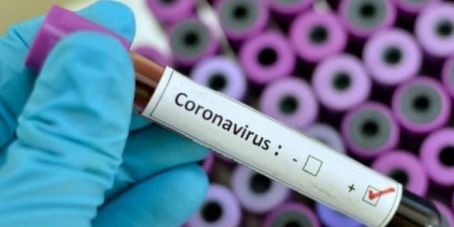 5 Things Small Business Owners Can Do in Response to the Coronavirus